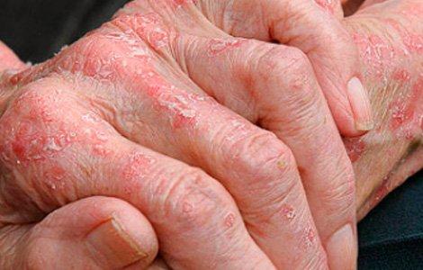 Eczeme ale pielii, Foto: vmiretrav.ru
