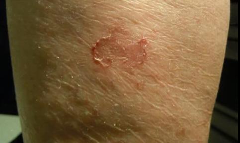Eczeme numulare