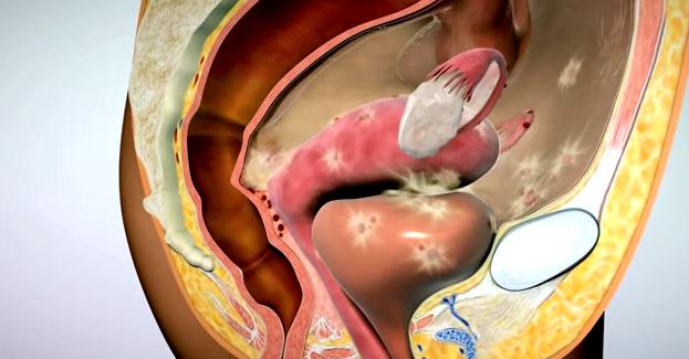 Endometrioza, inflamații