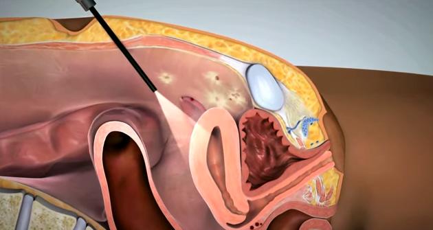 Endometrioza, intervenția medicală