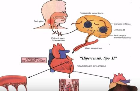 Faringita poate fi un factor de risc pentru cardiopatie