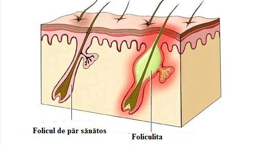 Foliculita, Foto: fitnesshealthpros.com