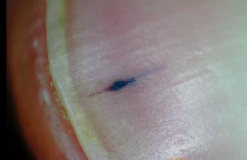 Hemoragii liniare la unghie