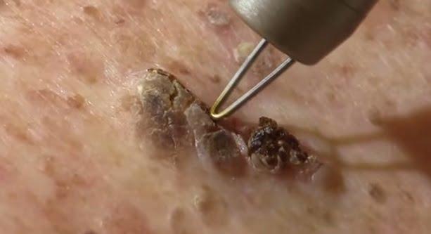 Intervenția medicală cu laser pentru eliminarea keratozei