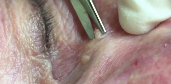 Intervenția medicală de îndepărtare a chisturilor din jurul ochilor