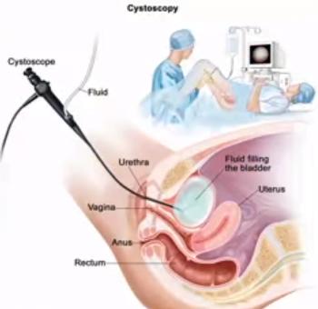 Intervenția medicală pentru tratamentul cancerului de trompe