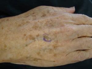 Keratoza seboreică pe dosul mâinii, Foto: dermatologypalmbeach.com