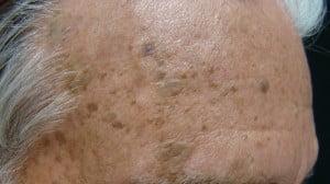 Keratoza seboreică pe frunte, Foto: dermatologypalmbeach.com