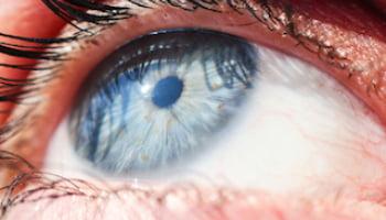 Ochii sunt sensibili și trebuie protejați obligatoriu de radiațiile ultraviolete prin ochelari de soare, Foto: marksdailyapple.com
