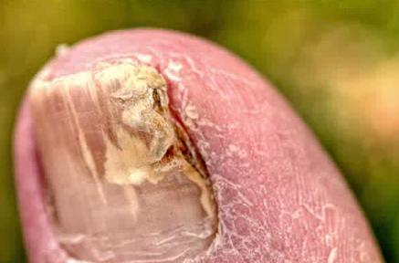 Onicoliza unghiei