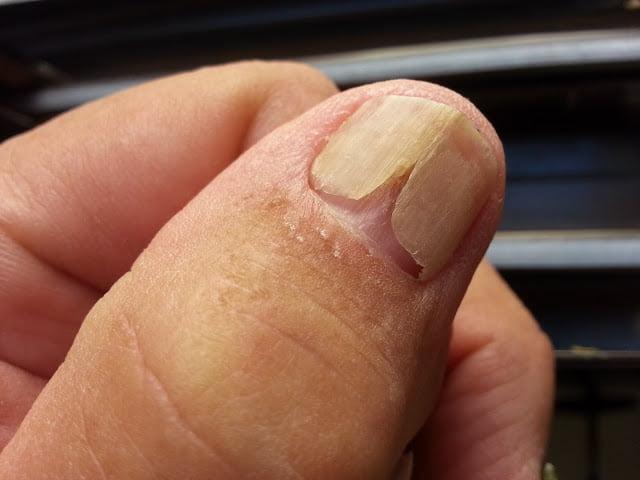 Onicomadesis, pierderea parțială a unghiei, Foto: elrincondelamedicinainterna.com