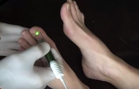 Onicomicoza unghiilor, tratament cu laser