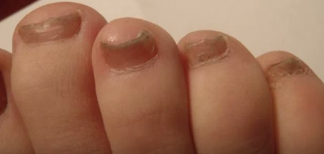 Onicomicoza unghiilor