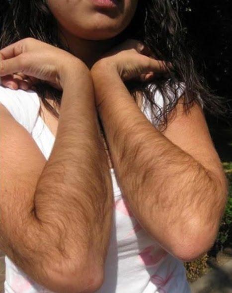 Păr crescut în exces pe brațe, Foto: bbs.clutchfans.net