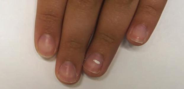 Pete albe pe unghie, afecțiunea numită leuconichie