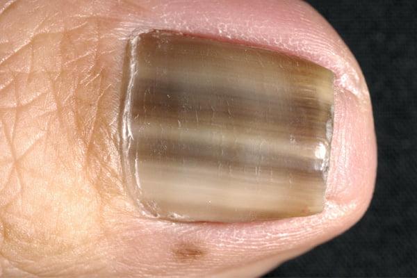 Pete maronii pe unghie