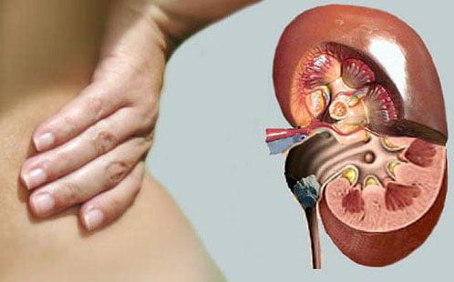 Pietre la rinichi, Foto: cmphmao.ru