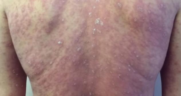 Pitiriazisul rozat, forma acută a bolii