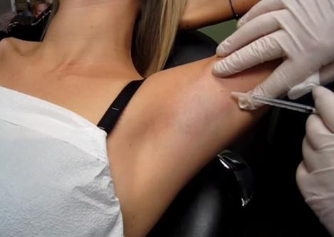 Procedura de injectare a toxinei botulinice