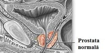 Prostată normală, Foto: imgarcade.com