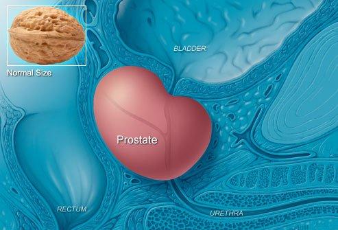 Prostata normală este cam cât o nucă, Foto: 2eyeswatching.com