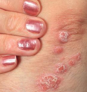 Psoriazisul gutat produs de infecțiile cu streptococi