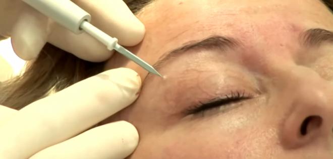 Puncție realizată de medicul dermatolog