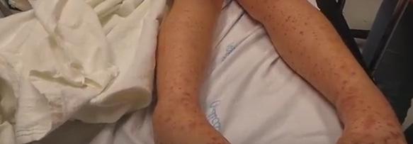 Purpura reumatoidă la copii