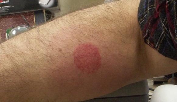 Reacție alergică la înțepătura de țânțar, Foto: pixgood.com