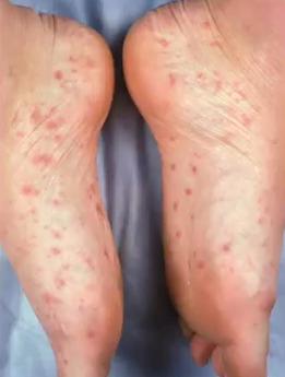 Sifilis, macule pe pielea picioarelor
