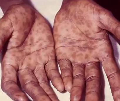 Sifilis, pete pe palme