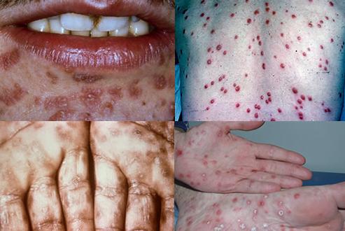 Sifilis secundar, Foto: tabletsmanual.com