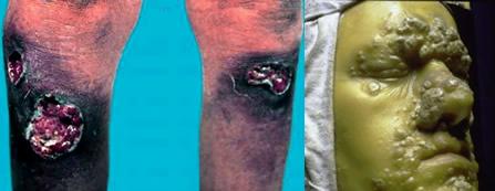 Sifilis terțiar, Foto: tabletsmanual.com
