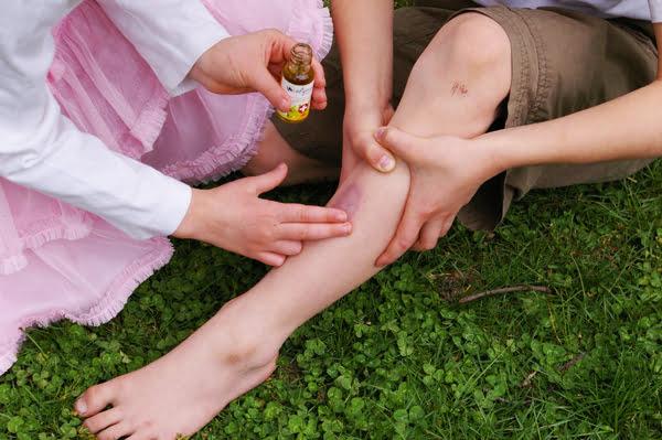 Traumatism minor la gambă, Foto: wellpark.co.nz