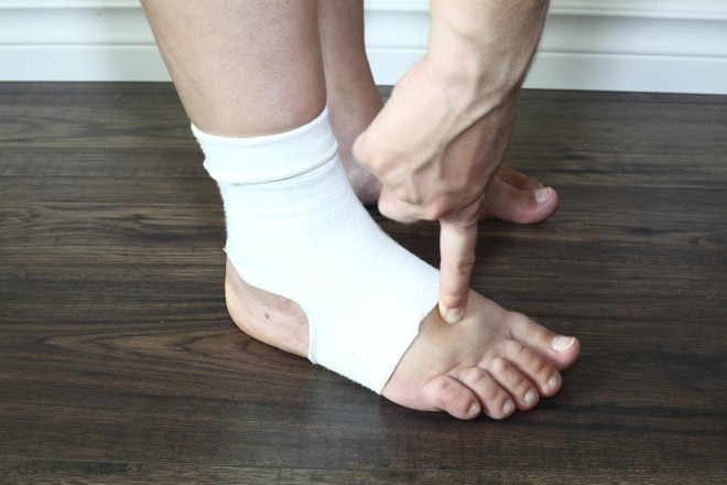 Umflarea picioarelor, Foto: lalaimane.com