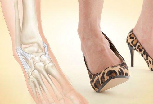 Un simplu pas greșit și poți suferi o entorsă, Foto: moyaspina.ru