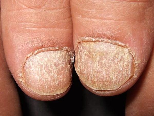 Unghie cu suprafața aspră, afecțiunea trachionichia, Foto: huidziekten.nl