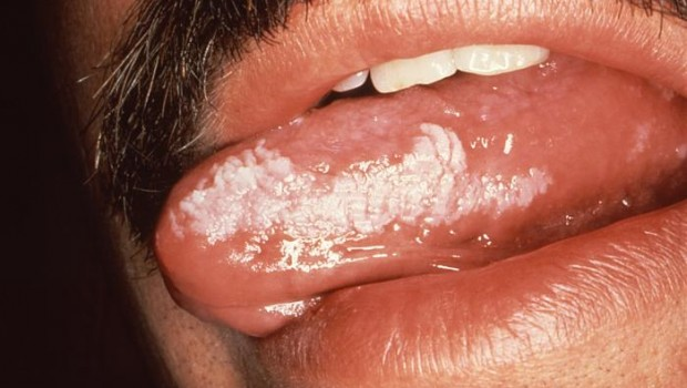 Virusul Epstein-Barr, simptome, Foto: dandane.ir
