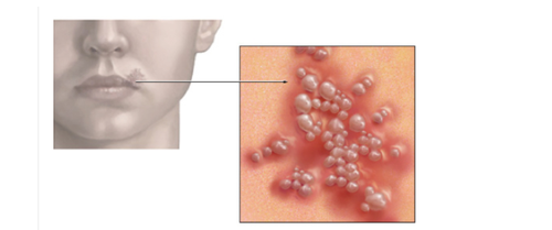 Virusul herpes simplex VHS tip 1, Foto: skinwellness.tumblr.com