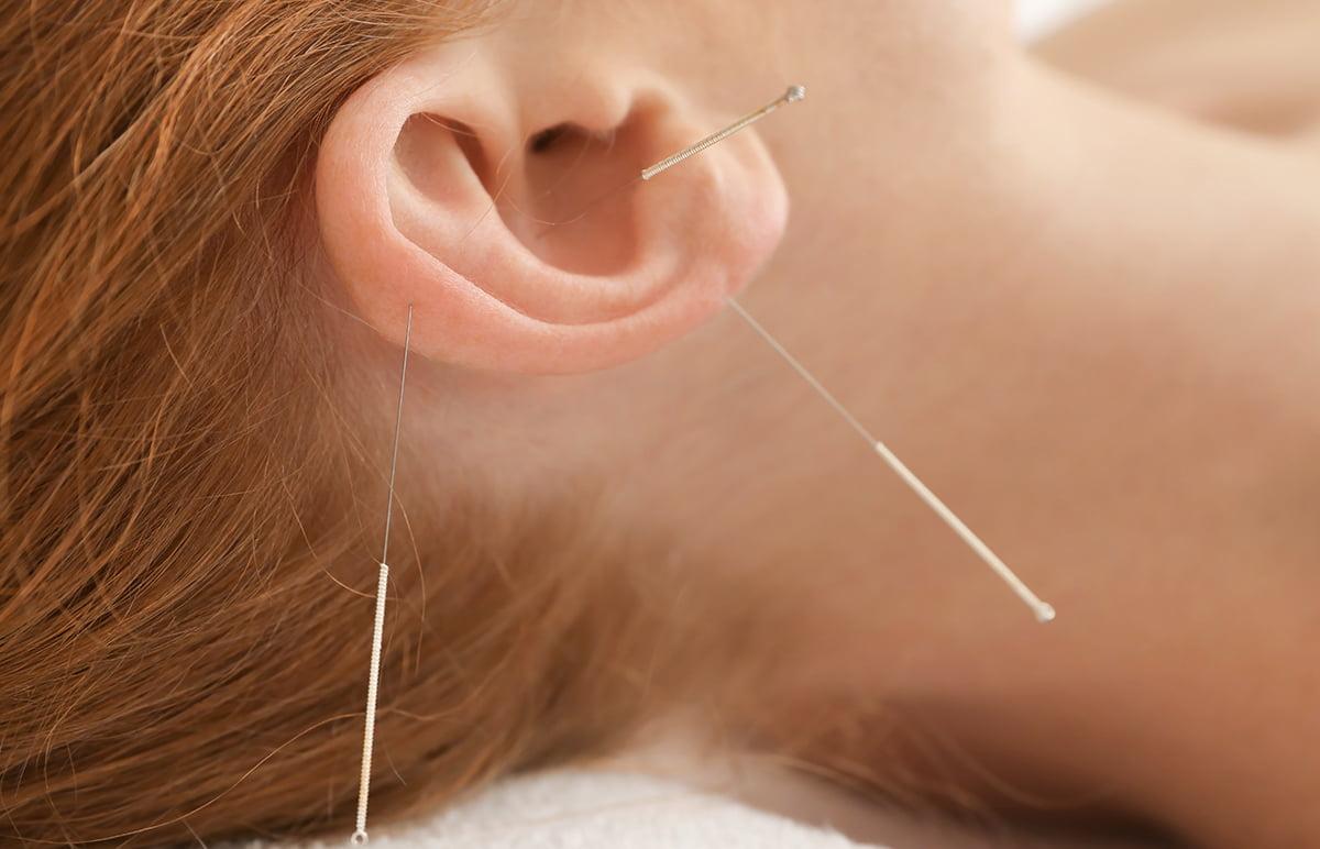 9-acupunctura