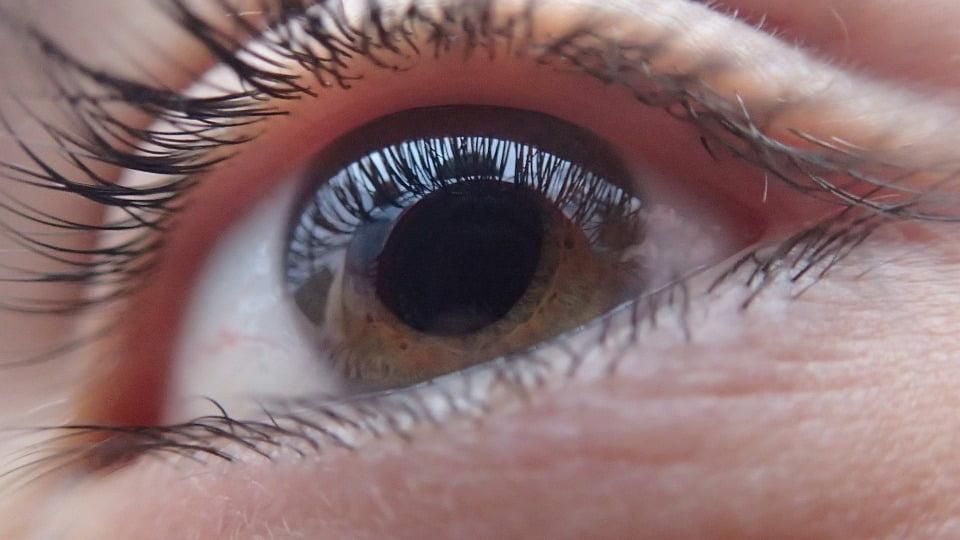 8-retinita-pigmentara